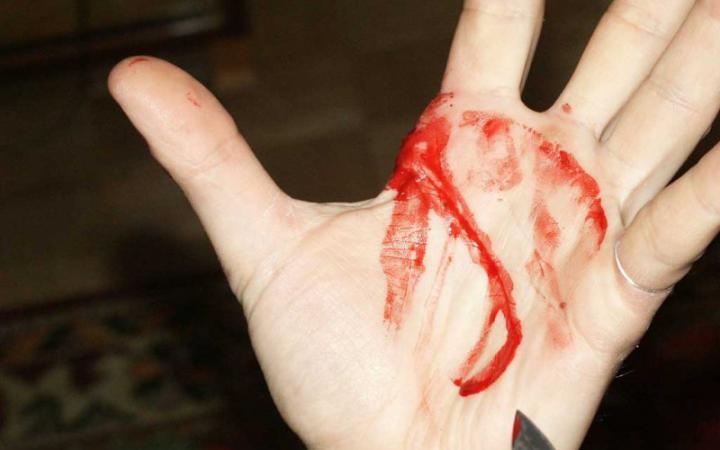 Рука в крові фото 728-279