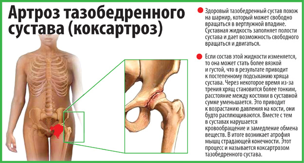 Упражнения при коксоартрозе тазобедренного сустава кислородные уколы для суставов