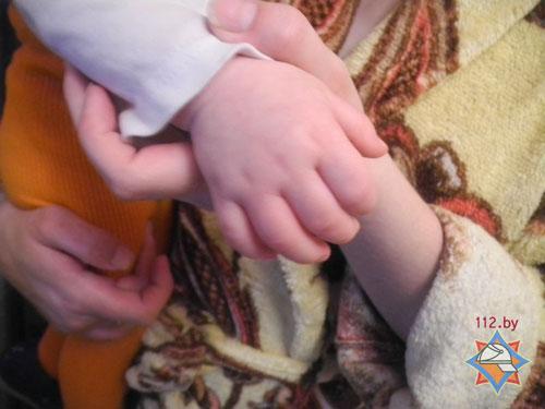 Утром 6 марта в Гомеле годовалый ребенок вставил пальцы руки в щель между петлями и дверной коробкой и не смог самостоятельно их достать