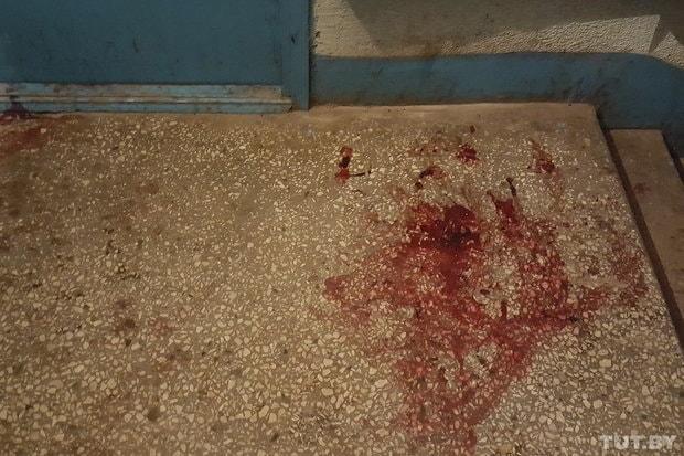 Гражданин Минска был ранен, пытаясь отнять пистолет умилиционера