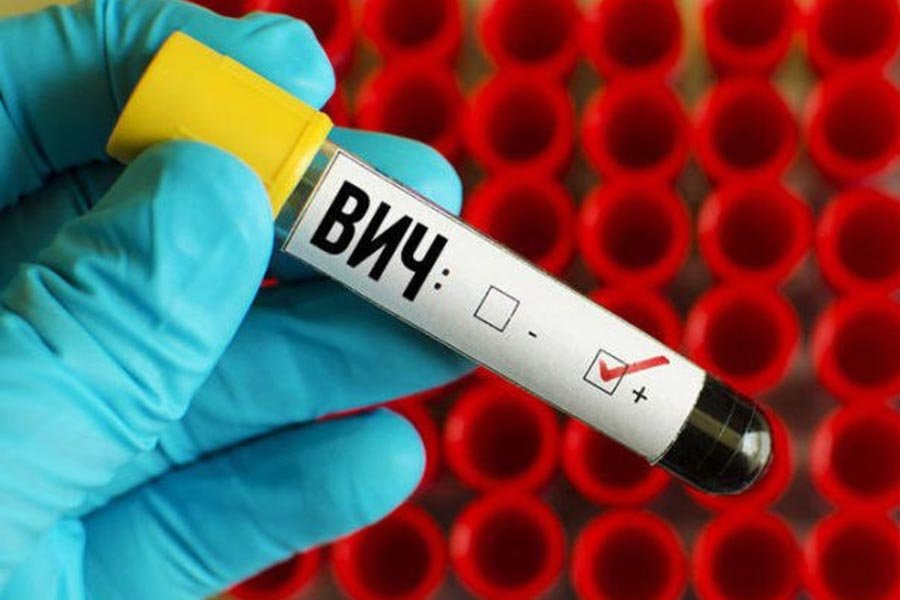 вирус иммунодефицита: диагностика