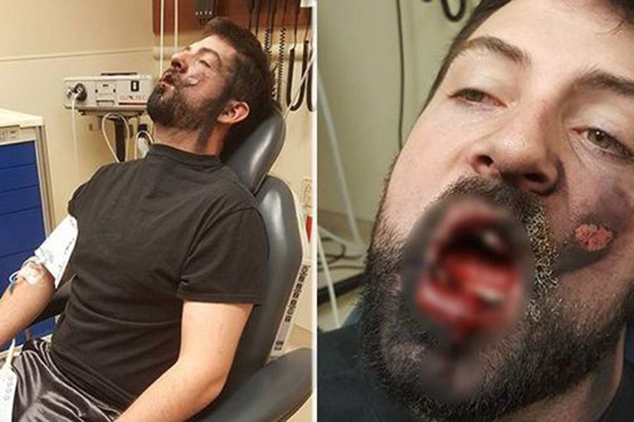Болят зубы от вейпа