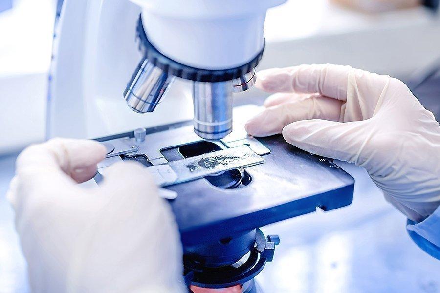 микроскопия на трихомонаду