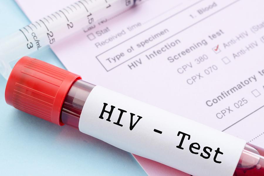 кровь на вирусную нагрузку при ВИЧ