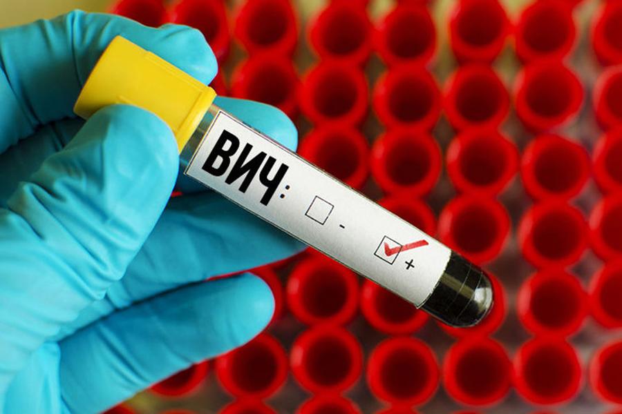кровь на ВИЧ: обнаружено