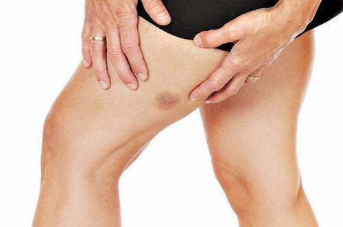синяк на ноге при онкологии