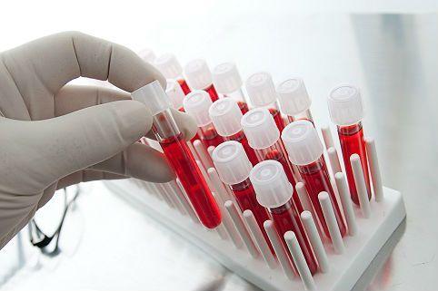 НаКамчатке стартует акция «Стоп ВИЧ/СПИД»