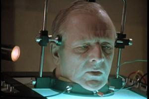 Итальянский хирург заявил о первой трансплантации головы трупу
