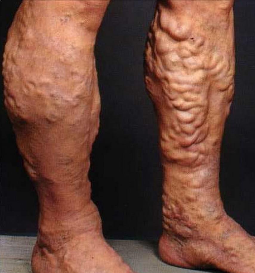 почему чешется вена на ноге варикоза нет