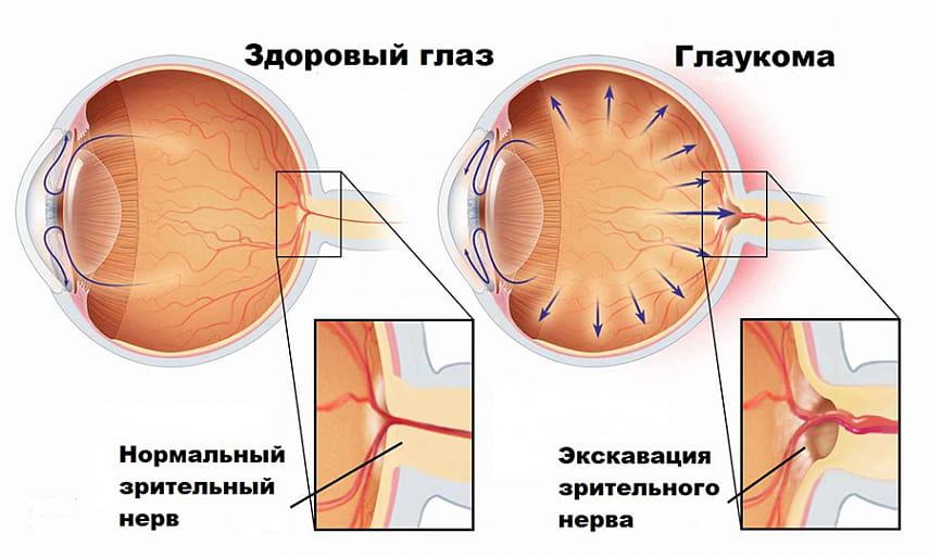 Через какое время наступает слепота при глаукоме